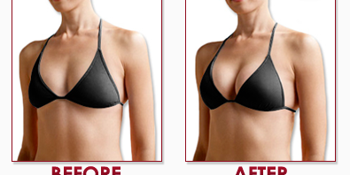 Before and after breast cream