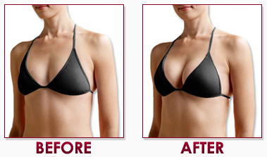 Get Naturally Bigger Breasts Fast
