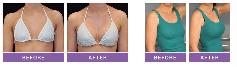 CC fabulous breast cream and pills befor and after