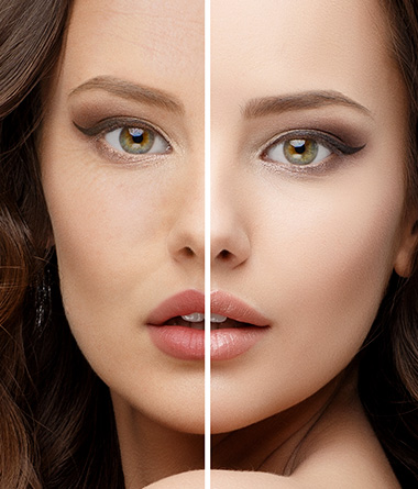 Before and After XYZ Collagen