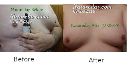 Natureday Men Before and After